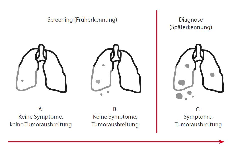 Abbildung 6: Wachstum und Ausbreitung des Lungenkarzinoms bei starken Rauchern.