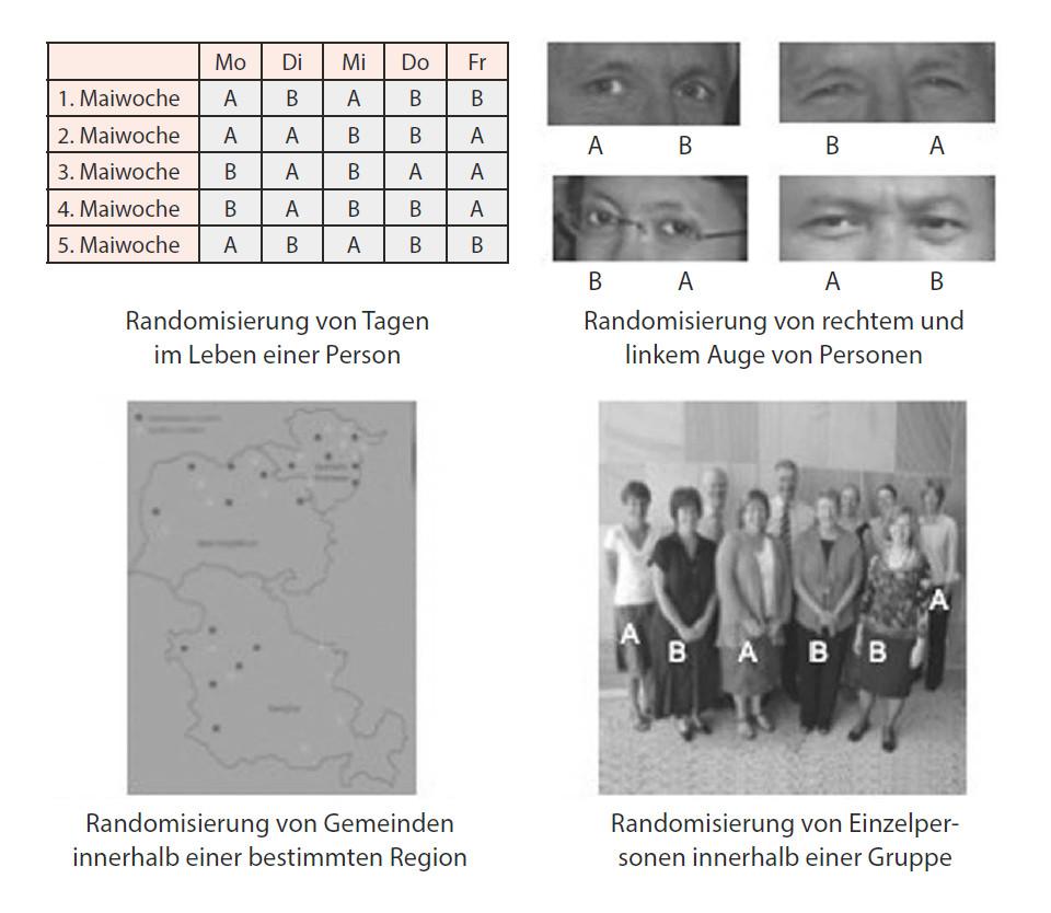 Abbildung 9: Verschiedene Möglichkeiten der randomisierten Zuteilung.